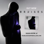 """FVK release """"Bruises"""" mini-album!"""